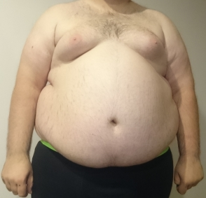 Central_Obesity_008.jpg