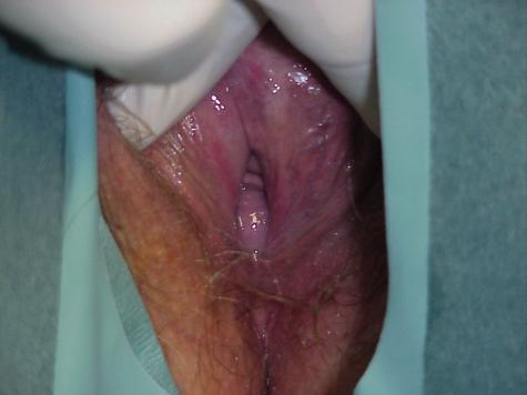 Bulge in vagina