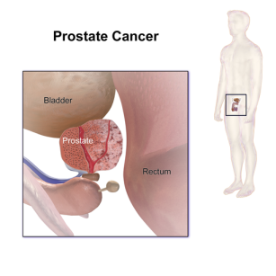 prostate_cancer