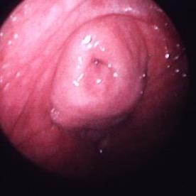 urethra-rest