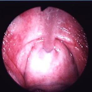 urethra-strain