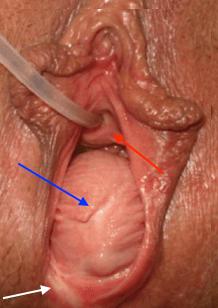 Gaping vagina pics