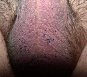 Angiokeratoma_of_the_Scrotum_5
