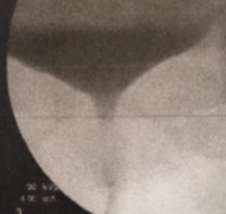 female sui strain