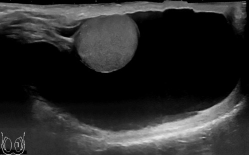 Ultrasonography_of_hydrocele