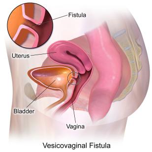 Vesicovaginal_Fistula