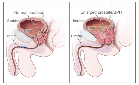 Benign_prostatic_hyperplasia