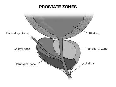 Prostate Zones