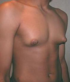 Adolescent_with_Gynecomastia