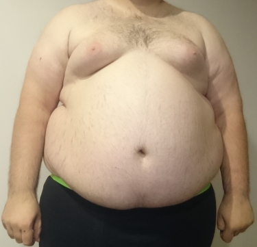 Central_Obesity_008