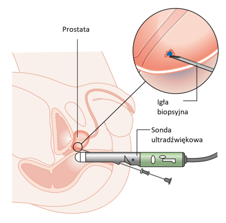 Diagram_showing_a_prostate_biopsy_CRUK_472_pl