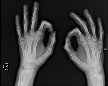 Medical_X-Ray_imaging_RQZ07_nevit