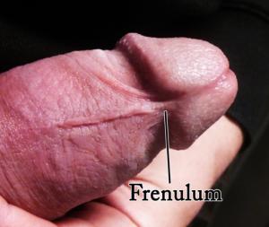 Human_penis_frenulum